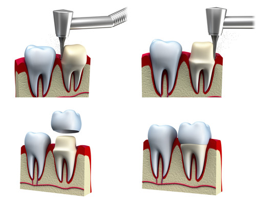 tooth_crown